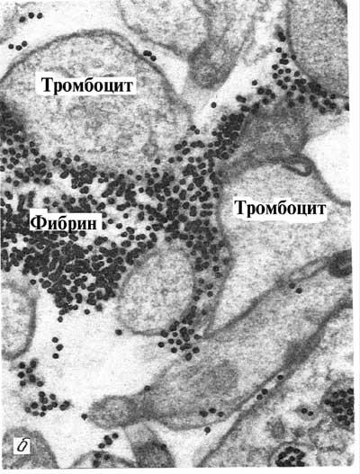 Этаноловый тест при двс синдроме - 2e2